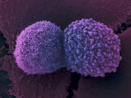Is Artificial Intelligence the Key to Curing Cancer