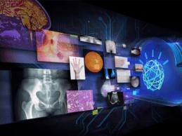 Agfa HealthCare Joins Watson Health Medical Imaging Collaborative