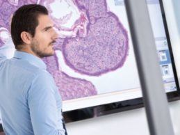 Blood-Based DNA Biomarker Panel Philips Acquires Northern Irish Digital Pathology Startup PathXL