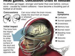 GE, Houston Texans to Fund 2-Year Concussion Telemedicine Pilot
