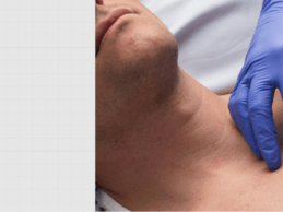 VitalConnect Lands $33M to Commercialize Medical-Grade Wearable Biosensor Platform
