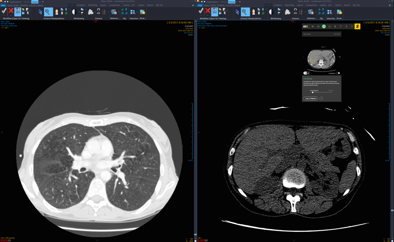 Zebra Medical Vision Enables Radiology Algorithms on Google Cloud With AI1 All-in-One Offering