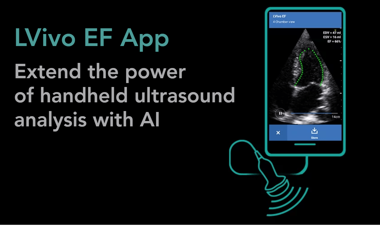 GE Healthcare, DiA Analysis Launches AI-Powered Ejection Fraction App for Mobile Ultrasound