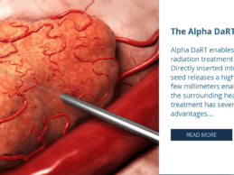 Israeli Startup Alpha Tau Medical Raises $29M for Radiation Cancer Therapy