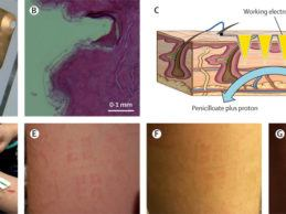 Research Microneedle Biosensor Accurately Detect Patient's Antibiotic Levels