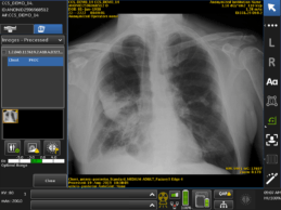 GE Healthcare Receives FDA Clearance of First Artificial Intelligence Algorithms Embedded On-Device to Prioritize Critical Chest X-ray Review