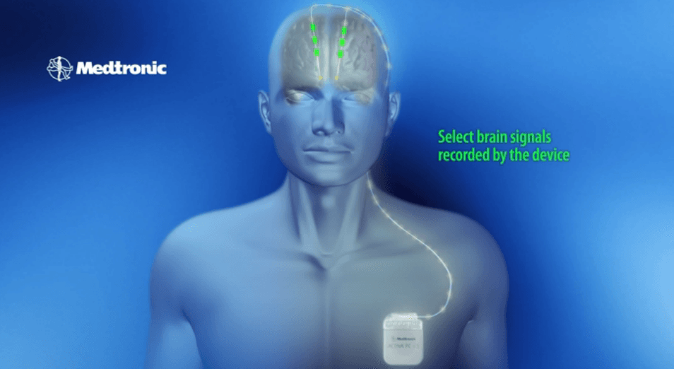 Medtronic Launches FDA-Approved Deep Brain Stimulation Device in U.S.