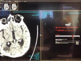 MaxQ AI to Offer Intracranial Hemorrhage (ICH) AI Software Apps on Blackford Platform