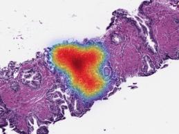 Paige Raises $45M to Expand AI-Native Digital Pathology Ecosystem