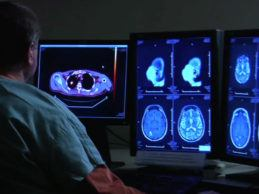 IBM Watson Health Unveils Imaging AI Marketplace of FDA-Cleared Solutions