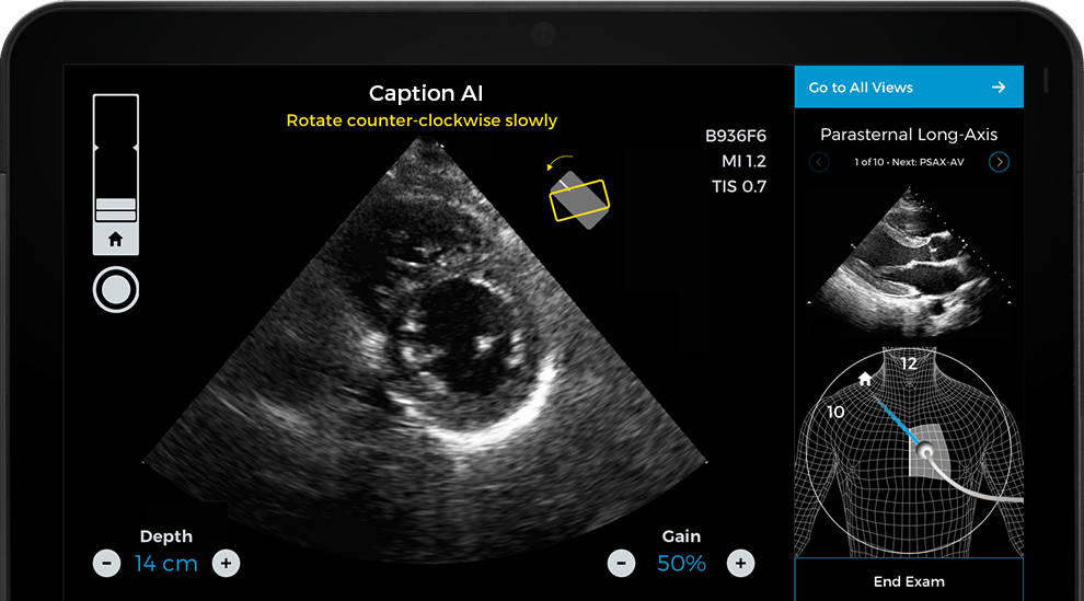 Caption Health AI Awarded FDA Clearance for Point-of-Care Ejection Fraction Evaluation