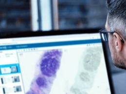 Philips Partners With Proscia to Accelerate Digital Pathology Adoption