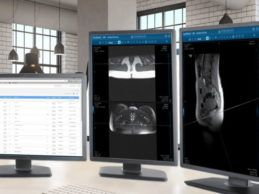 Change Healthcare Acquires Cloud-Native Imaging Platform Nucleus.io