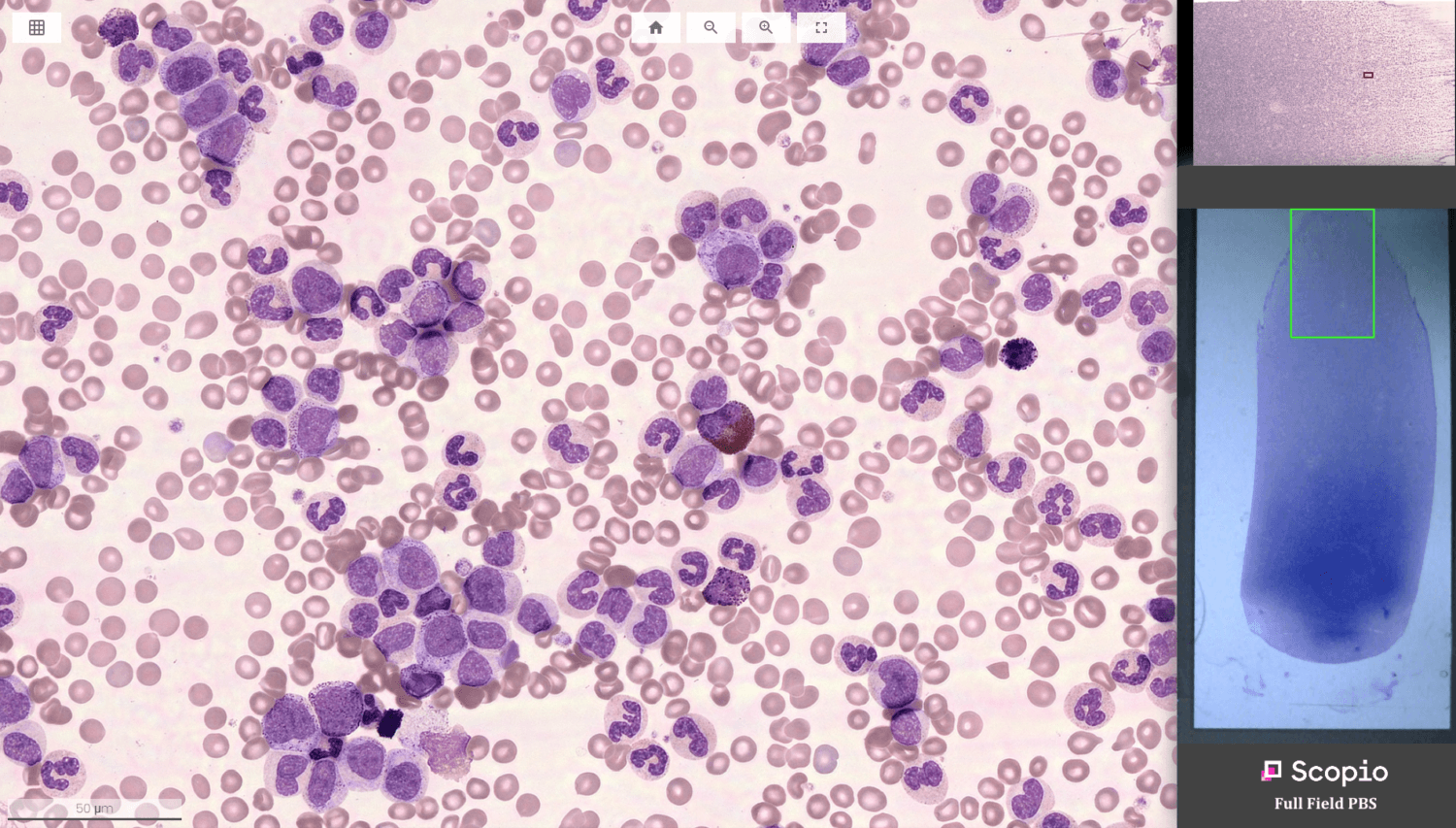 FDA Clears First-in-World Hematology App, Unlocking Potential of Diagnosis