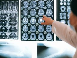 More Than 45 Million Medical Images Are Openly Accessible Online