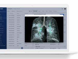Flywheel Nabs $15M for Next-Gen Informatics Platform for Medical Research & Collaboration
