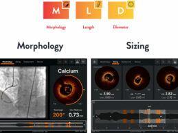 Abbott Launches New Coronary AI-Powered Imaging Platform in Europe