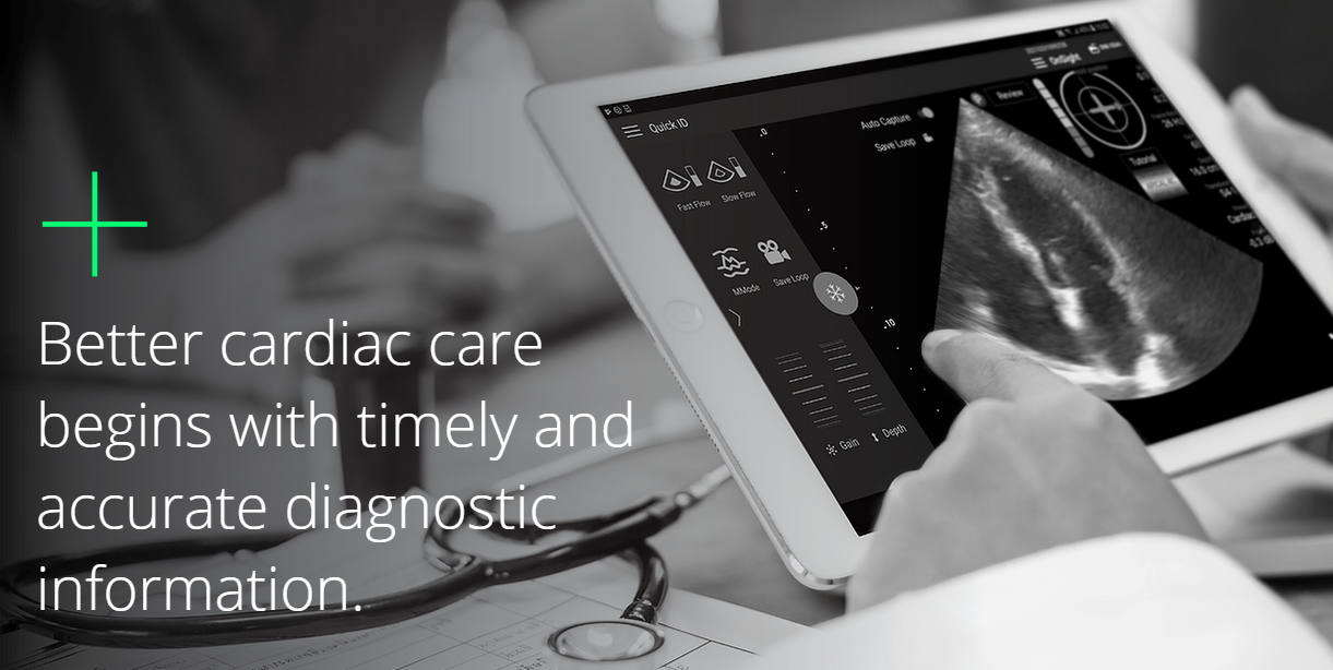 UltraSight Raises $13M to Bring AI-Guided Cardiac Ultrasound to Point of Care