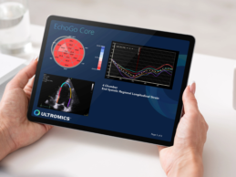 Ultromics Raises $33M for AI-Enabled Echocardiograms to Help Clinicians Diagnose Heart Disease
