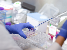 Cedars-Sinai Cancer Launches 'Molecular Twin' Initiative to Advance Precision Cancer Treatment