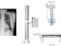 VUNO Inks Deal with Samsung to Integrate AI Chest X-Ray with Samsung's Digital Radiography System